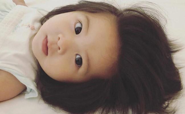 Аномальные волосы озолотили годовалого ребенка