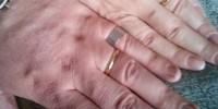 Италия: пара продала обручальные кольца, чтоб купить лекарства