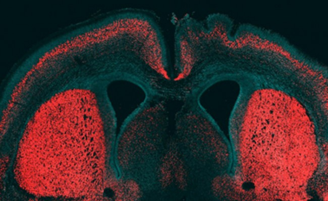 Ученые нашли ген уникальности человеческого мозга