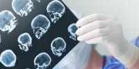 Испанские ученые создали первый биобанк нейронов