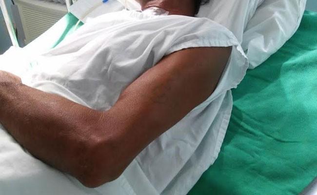 Португалия: госпитализация - на дому