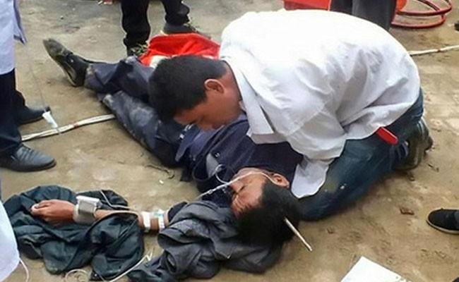 Строитель пробил голову металлическим штырем и выжил