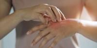 Испания: как кожа сигнализирует о заражении коронавирусом